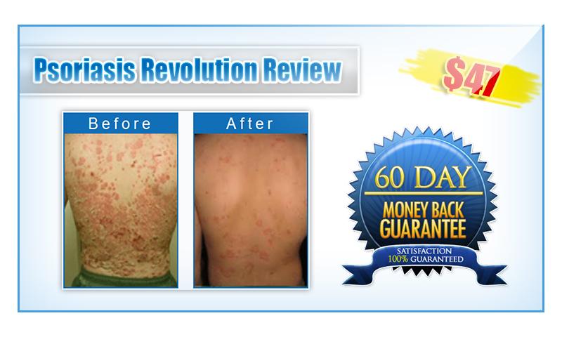 Psoriasis Revolution review